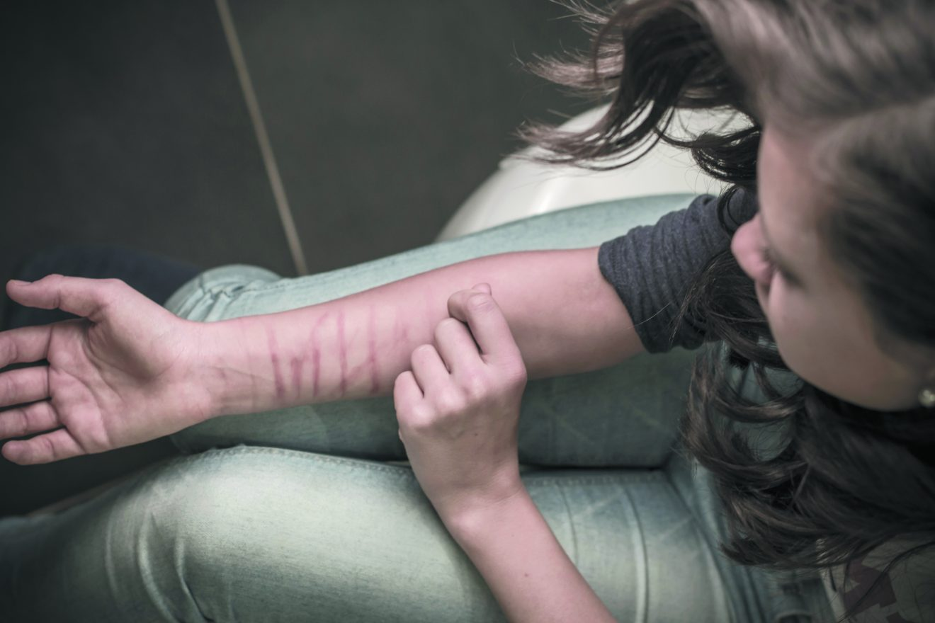 Young girl scratching arm in frustration self abusing. Self harm. self-harm. self-harming