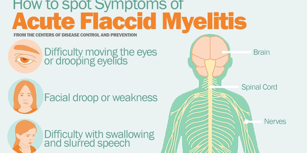 Chart shows symptoms of acute flaccid myelitis; two cases have been confirmed in Michigan.