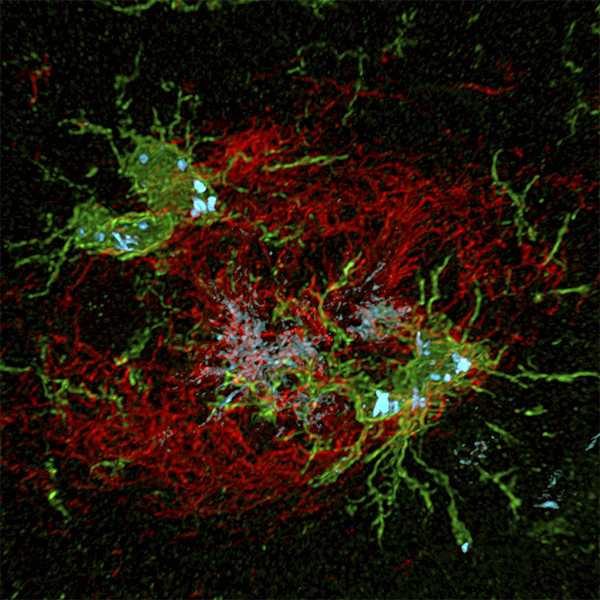Amyloid Beta plaque red surrounded by microglia green in mouse brain