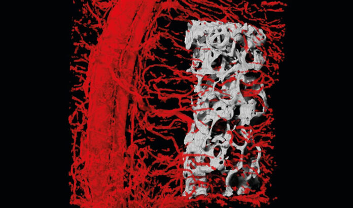 A 3-dimensional CT scan depicting blood vessels penetrating into the embedded bone, grown within the engineered flap.