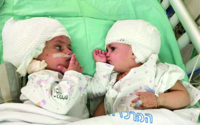 The conjoined twins, newly separated, look at each other for the first time on Sept. 5.